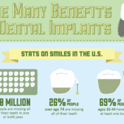 Benefits of dental implants infographics