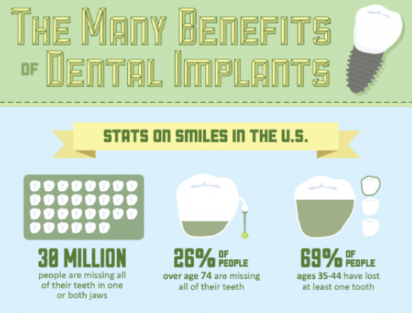infographic  the benefits of dental implants
