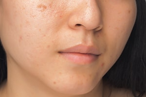What causes acne and pimples